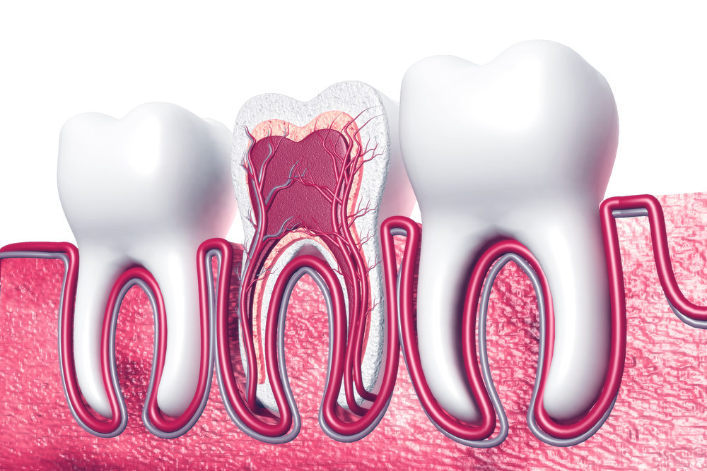 How Root Canal Infection Treated