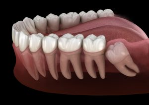 Tooth Alignment Change After Wisdom Tooth Extraction model