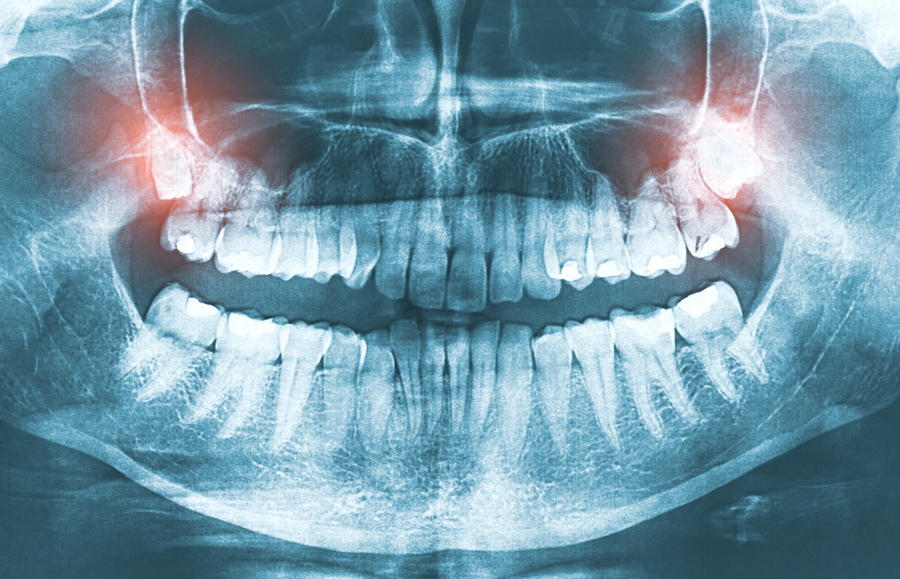 Tooth Alignment Change After Wisdom Tooth Extraction