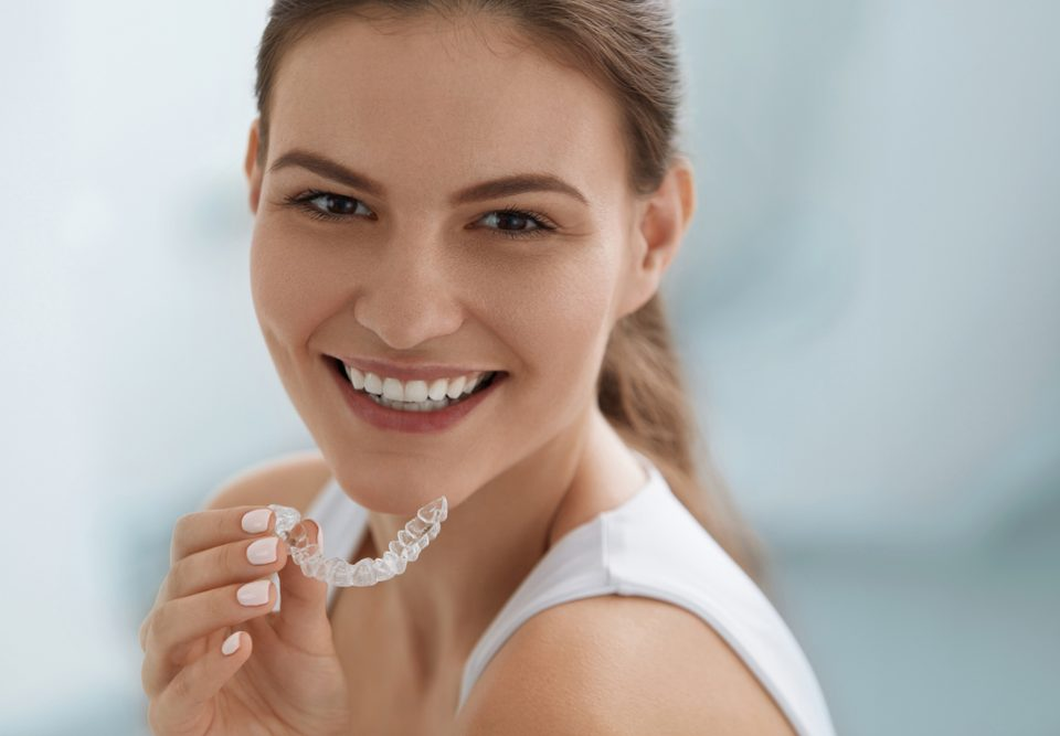 7 Things You Didn't Know Clear Aligners