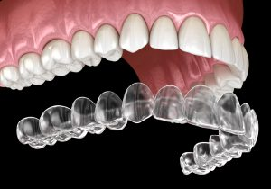 7 Things You Didn't Know Clear Aligners 3d model